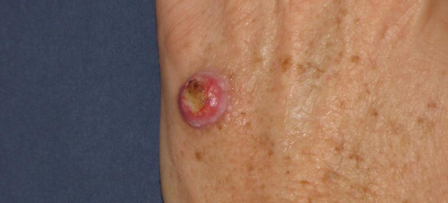 Ciencia: Fármaco contra melanoma ofrece esperanzas a pacientes