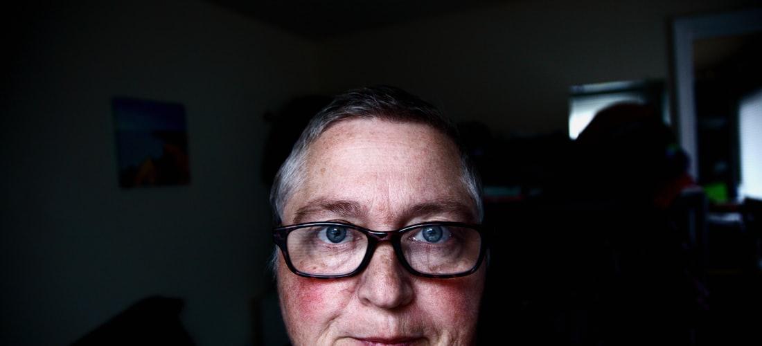 Manchas de la Edad en la Cara