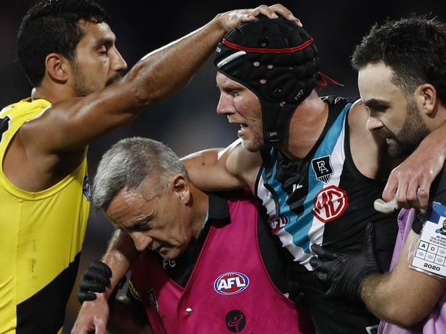 AFL nearly doubles amount of time on sidelines for concussed players under new guidelines