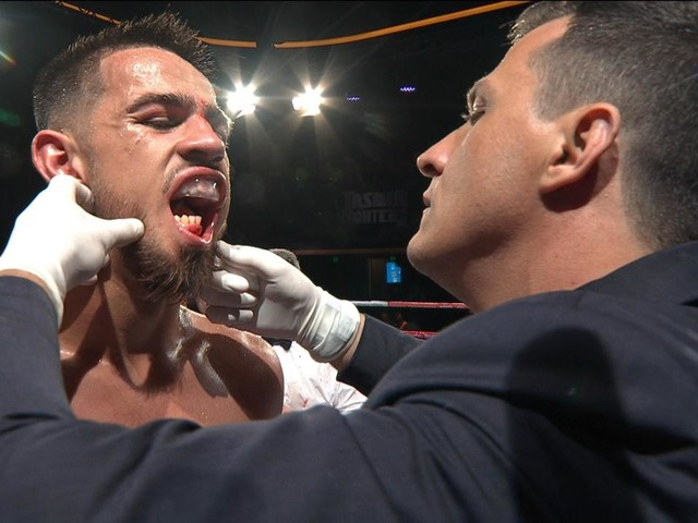 Commentators stunned as boxer fights five rounds with 'horrific' broken jaw