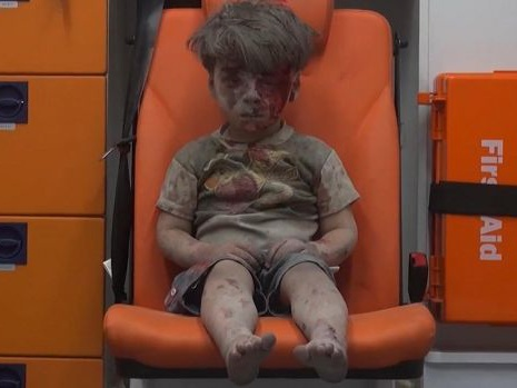 The stunned, bloodied face of a child survivor sums up the horror of Aleppo