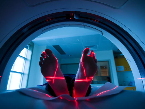 Medical revolt over MRI restrictions for over-50s
