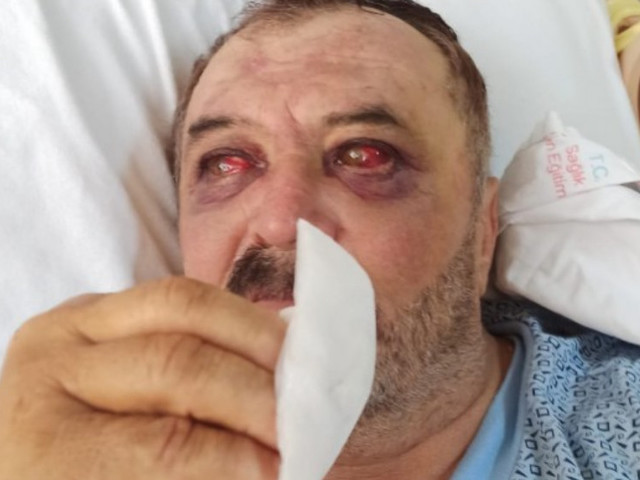 Kurdish farmers suffer horrific injuries after being thrown from military helicopter