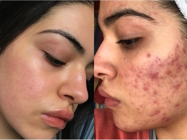 If You Suffer From Acne, These 6 Transformations May Give You Hope