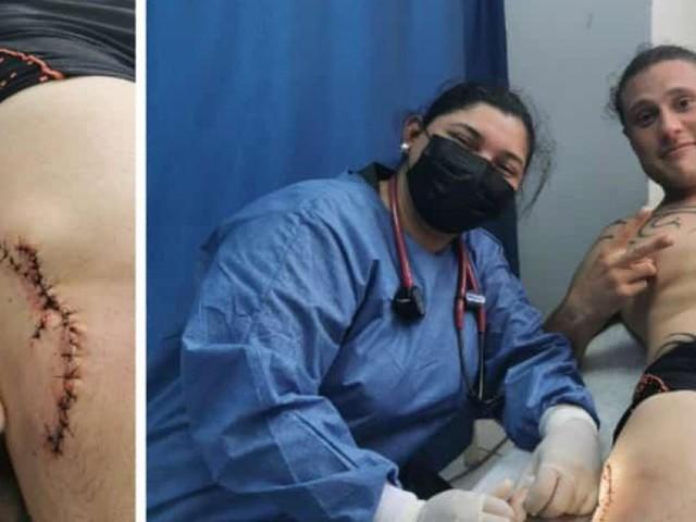 Maxime, Namurois de 31 ans, attaqué par un requin lors de ses vacances aux Galápagos: «Il m'a mordu et est reparti, il n'a sûrement pas aimé le goût»