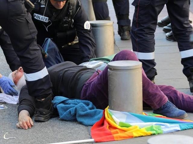 Geneviève, la dame âgée blessée lors de la manifestation des Gilets jaunes à Nice, est dans le coma: «48h déterminantes»