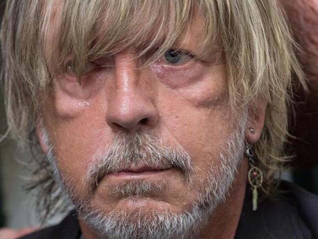 Les fans inquiets: le chanteur Renaud une nouvelle fois hospitalisé d'urgence!