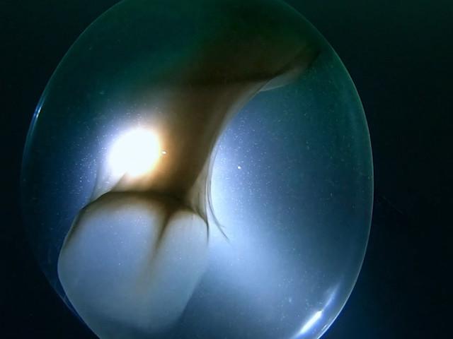 Duikers ontdekken reusachtige eierzak van inktvis