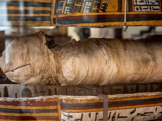 Découverte: la chirurgie dentaire existait déjà au temps des Pharaons