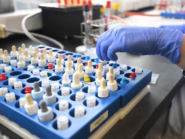Gemiddeld 85 nieuwe besmettingen, 5 sterfgevallen en 14 opnames per dag