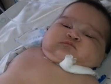 Bebê de três meses morre à espera de remédio em falta em Fortaleza