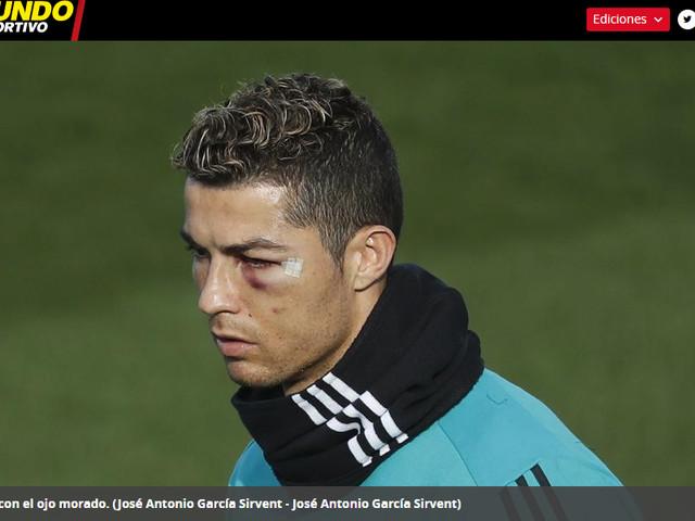 Olho de Cristiano Ronaldo segue inchado e roxo dois dias após choque