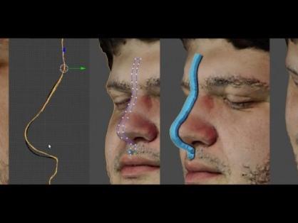 Planejamento de rinoplastia 3D digital com o RhinOnBlender