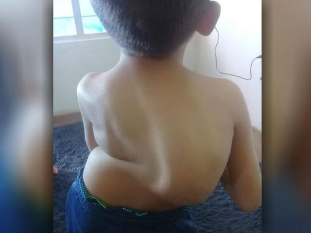 Garoto com escoliose avançada espera por cirurgia há mais de dois anos: 'Torturante', diz tia