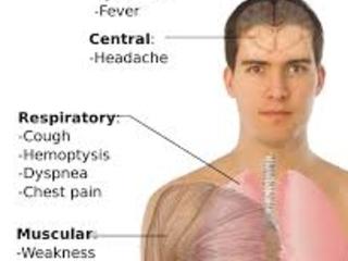 Madagascar: 51 novos casos de peste - 29 são pneumônicos
