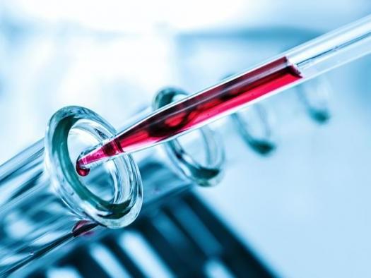 Cientistas criam exame de sangue capaz de prever risco de morte