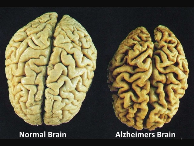 Part of the Brain is Unaffected by Alzheimer's, Study Shows