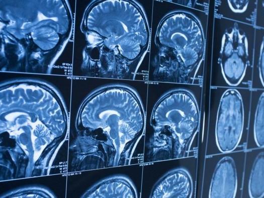 Quantos anos tem seu cérebro? Cientistas treinam IA para revelar idade cerebral