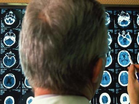 ¿El fin del alzhéimer o la diabetes? Los fármacos más valiosos que llegan en 2019