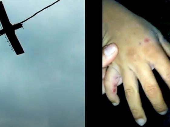 Violência rural | Agrotóxicos lançados de avião ferem crianças em área de disputa no Maranhão