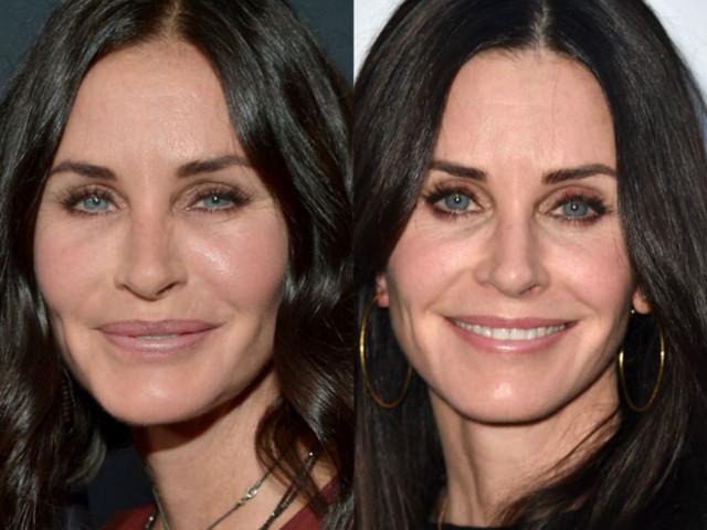 Atriz da série 'Friends' surpreende ao aparecer sem preenchimento facial