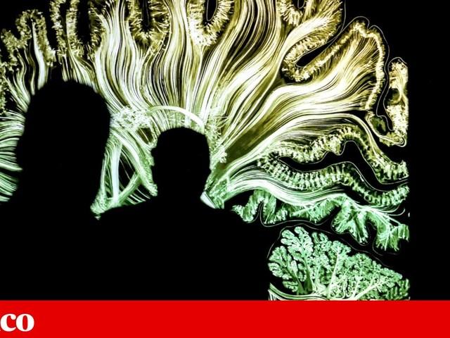 Fundação Champalimaud em quarta posição em ranking mundial de inteligência artificial