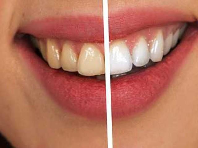 Lente contato dental: saiba quais são os riscos do procedimento