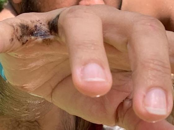 Desastre ambiental | Óleo invisível nas praias do Nordeste deixa manchas em banhistas