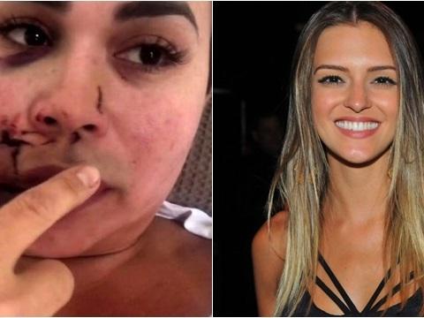 Mulher é agredida em restaurante de luxo e passa por cirurgias