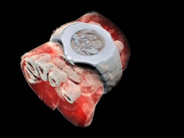 Primeiro exame de raios X colorido e tridimensional é feito em humanos