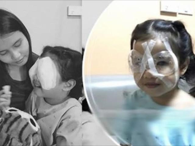 Menina de 4 anos quase perde a visão devido ao uso excessivo de celular