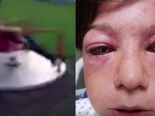 """Criança de 11 anos fica gravemente ferida após """"novo desafio"""" da internet"""