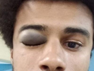 Jovem que fazia panfletagem para Haddad é agredido com barra de ferro