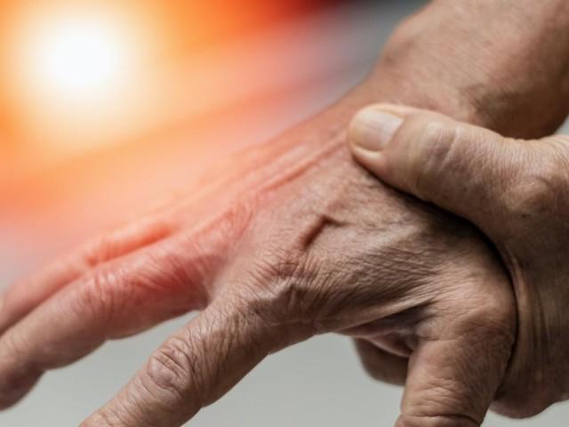 Descubren que la combinación de dos medicamentos puede revertir la artrosis que padecen 7 millones en España