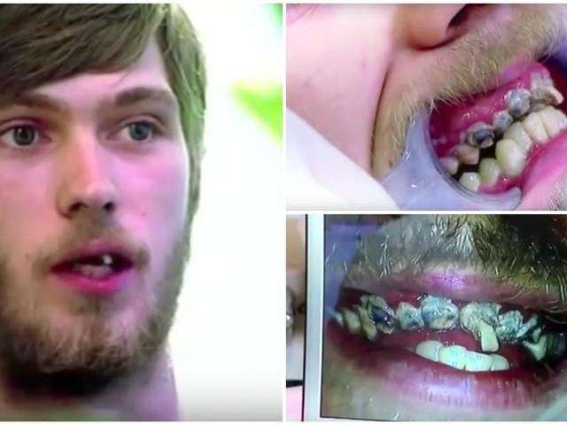 Este jovem de 20 anos nunca escovou os dentes na vida e procurou ajuda