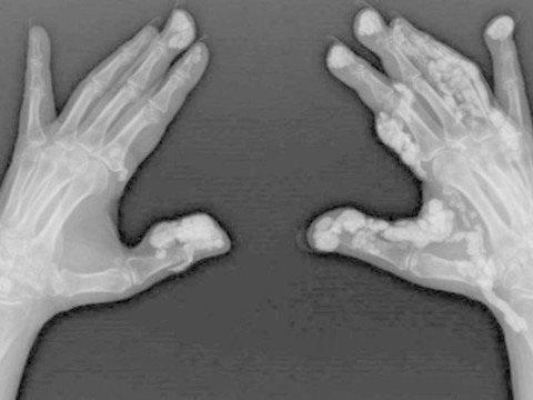 Síndrome rara faz com que pele se 'transforme em pedra' após picada de inseto