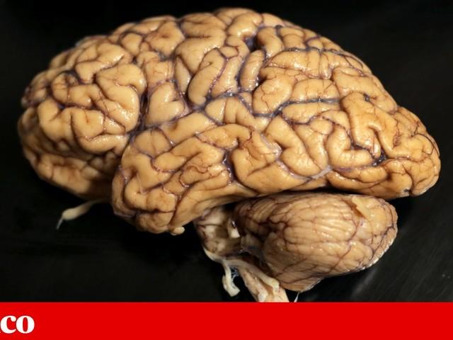Único Banco de Cérebros Humanos do país tem 60 exemplares para estudo