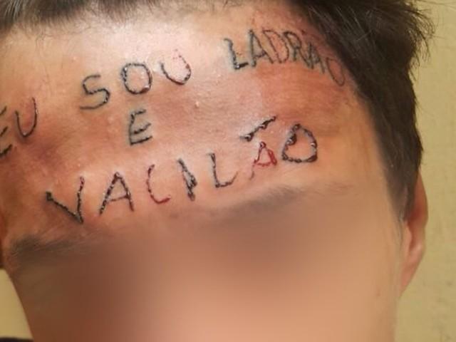 Clínica começa a remover tatuagem da testa de jovem