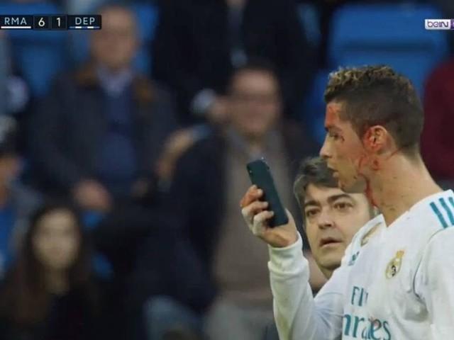 Cristiano Ronaldo abre o supercílio e pede celular para ver sangramento; vídeo
