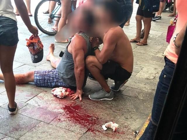 Fotógrafo é agredido ao reclamar de bateria: 'Achei que fosse morrer'