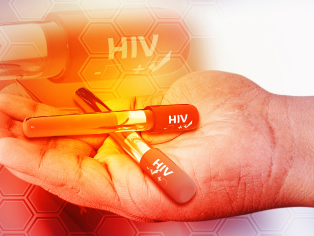 Brazilian study to cure HIV will resume by the end of the year