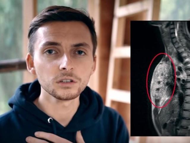 The Real Life Guys: Bickenbacher Youtuber an Krebs gestorben
