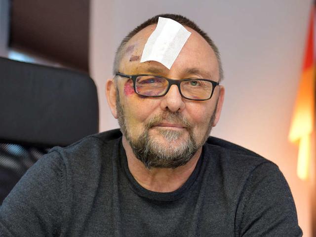 """Für AfD mal """"etwas gut gewesen"""": Magnitz äußert sich zu Angriff und äußert Verdacht über Täter"""