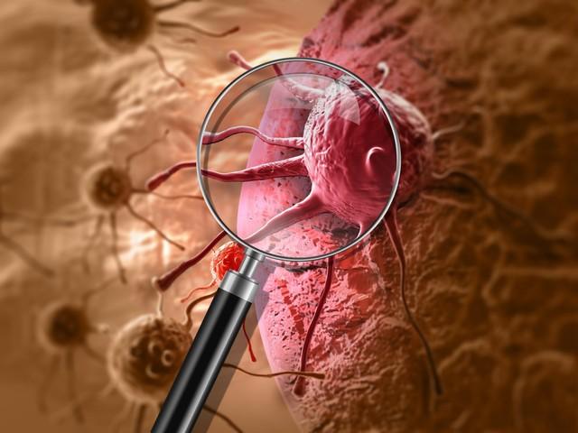 Krebs: Neu entwickelte Antikörpertherapie gegen Brustkrebszellen