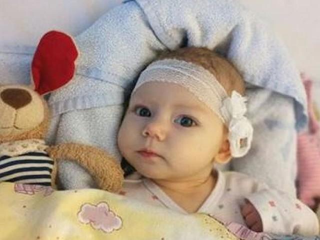 Aufruf auf Facebook - Erst vier Monate alt: Eltern suchen Stammzellspender für die kleine Leevke