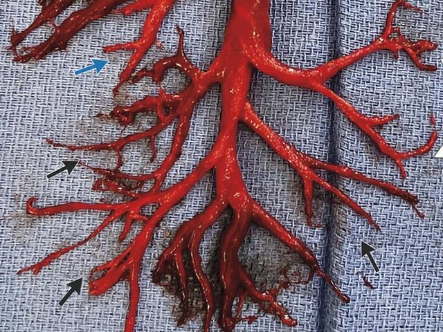 Nichts für schwache Nerven: Amerikaner hustet sich Teil der Lunge aus dem Leib