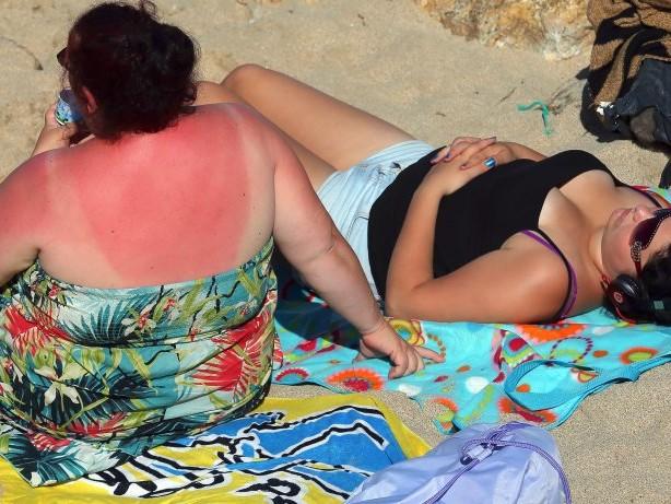 Sommer: Vor diesen Irrtümern warnen Experten beim Sonnenschutz