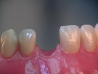 Implantate -