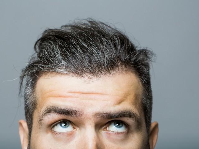 Stress lässt Haare ergrauen, aber dies ist temporär reversibel