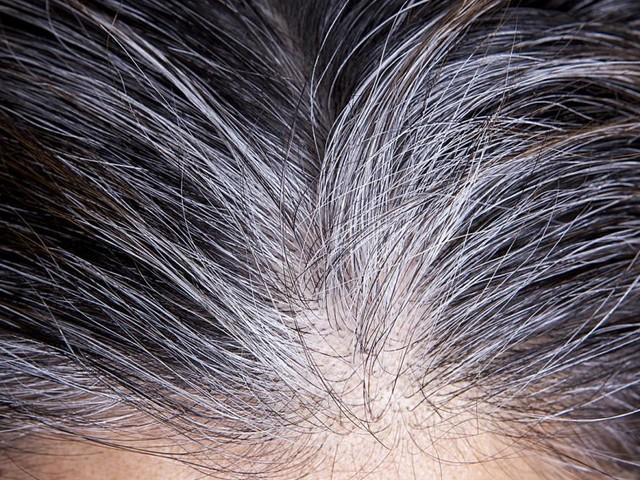 Kopfsache: Stress macht Haare grau – aber nicht zwingend für immer